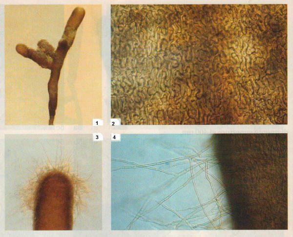 Trufa negra, tuber melanosporum, en el microscopio.